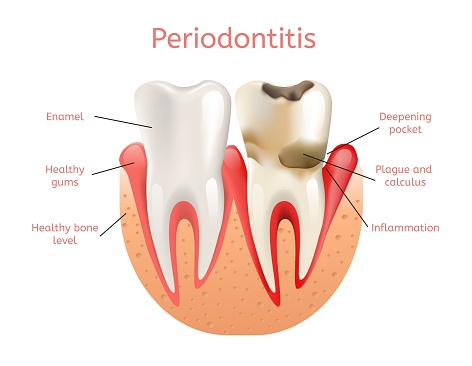 Side by side comparison diagram of a tooth effected with plague and a healthy tooth at Periodontal Associates.